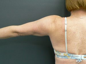 tumescent-liposuction-treatment-after