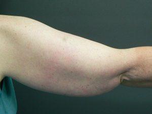 tumescent-liposuction-treatment-before