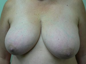 breast-reduction-female-before
