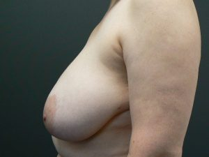breast-reduction-female-after