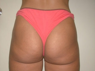 Tumescent Liposuction After