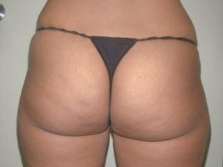 Tumescent Liposuction Before