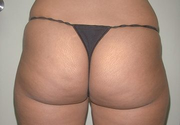 tumescent-liposuction-treatment-before