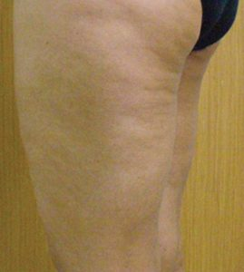 Cellulite-after