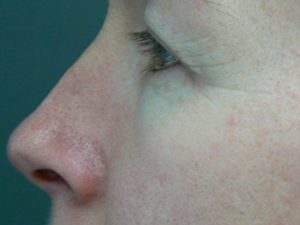 eyelid-surgery-before
