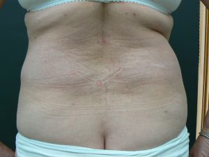 hips-fat-transfer-after