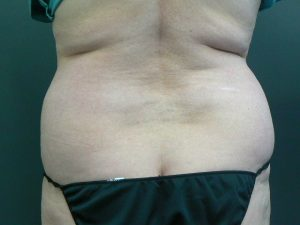 hips-fat-transfer-before