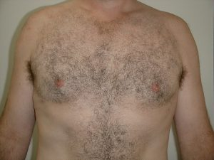 male-breast-reduction-after
