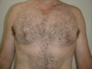 Male Breast Reduction Encorė Cosmetic Clinic