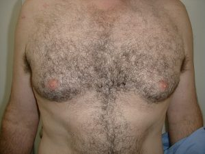 male-breast-reduction-before