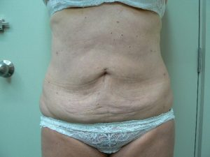 Tumescent Liposuction treatment -after