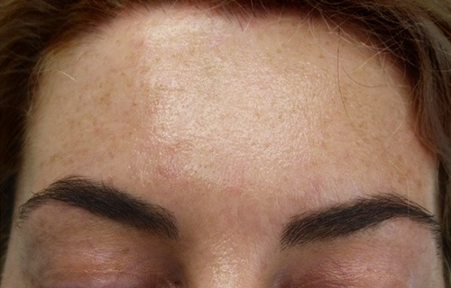Botox Treatment After - Encore Health