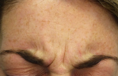 Botox Treatment Before - Encore Health