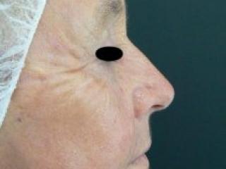 Laser facial rejuvenation. Encorė Cosmetic Clinic