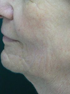 Laser facial rejuvenation. Encorė Cosmetic Clinic