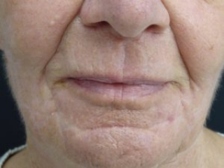 Laser facial resurfacing. Encorė Cosmetic Clinic