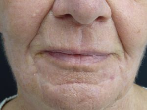 Laser facial resurfacing. Encorė Cosmetic Clinic