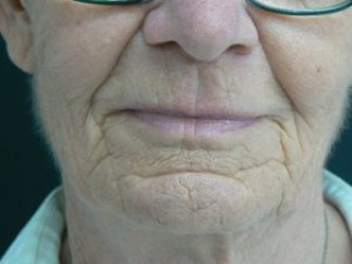 Laser facial resurfacing  Encorė Cosmetic Clinic