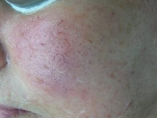 IPL Hair Removal Before and After