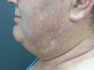 Tumescent  liposuction. Encorė Cosmetic Clinic