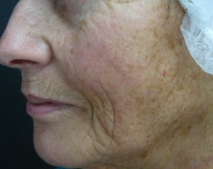 Laser Facial Resurfacing Before and After