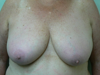 Breast reduction Encorė Cosmetic Clinic