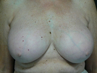 Breast reduction. Encorė Cosmetic Clinic