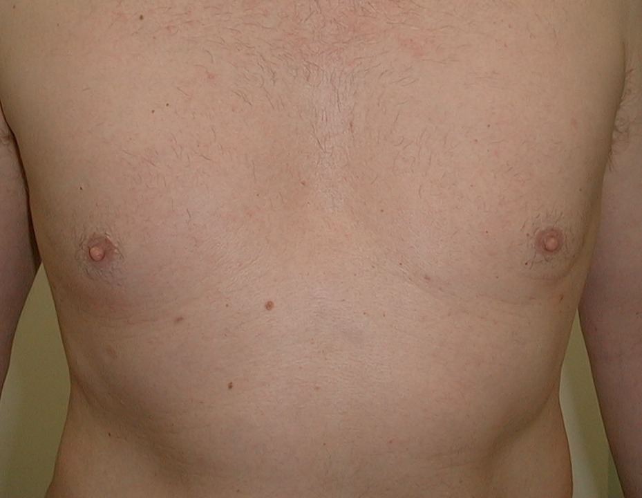 Male Breast Reduction. Encorė Cosmetic Clinic