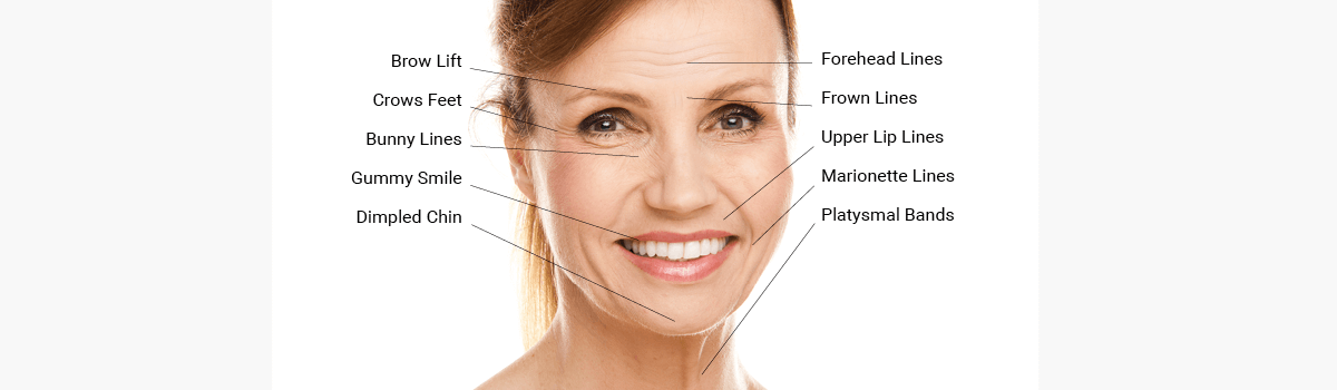 Botox Christchurch Crows Feet Encore Health